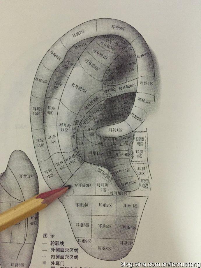 耳穴的分区图片